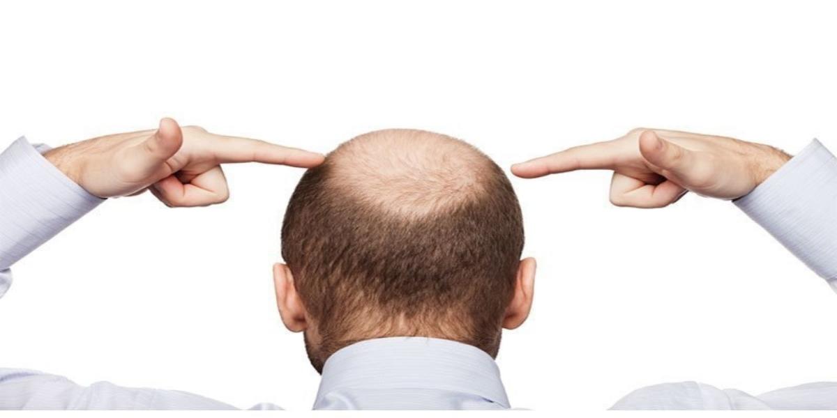 بالوں پر اثرات